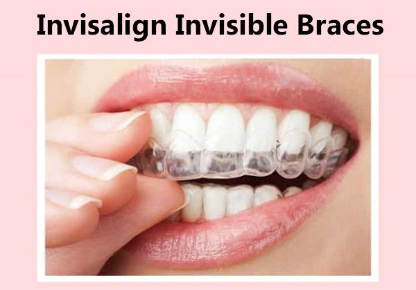 Invisalign Invisible Braces