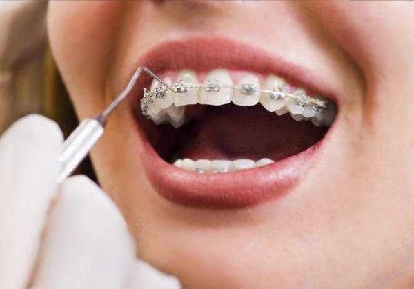 Advance Orthodontic