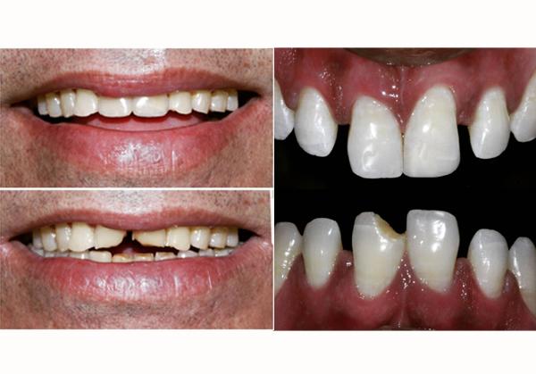 Dental Veneers and Laminate
